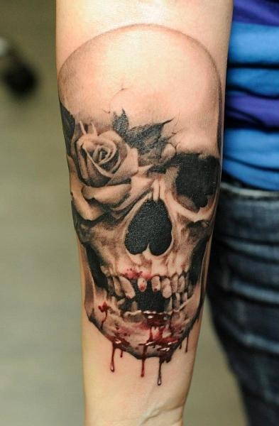 Arm flower skull blood tattoo by radical ink for Bloody ink tattoo price