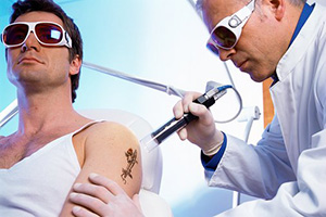 tattoo removal laser Q-switched